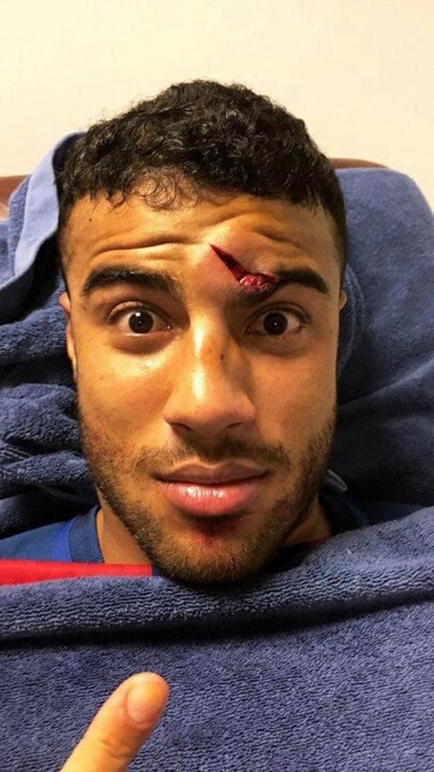 VIDEÓ - Felszakadt a szemöldöke a Barcelona egyik játékosának